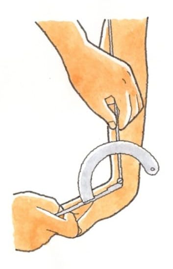 手関節の計測と注意点