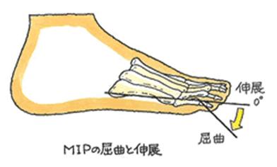 MIPの屈曲と伸展