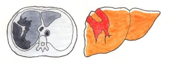 肝臓の仕組みと障害