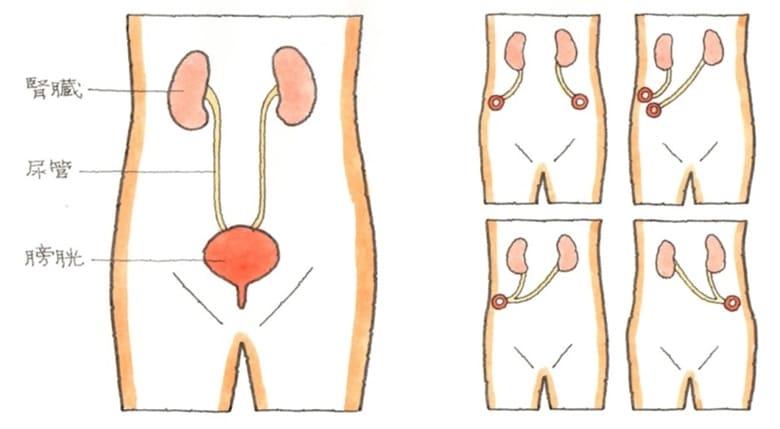 泌尿器 尿管・膀胱・尿道の仕組みと障害