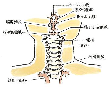 椎骨脳底動脈血行不全症