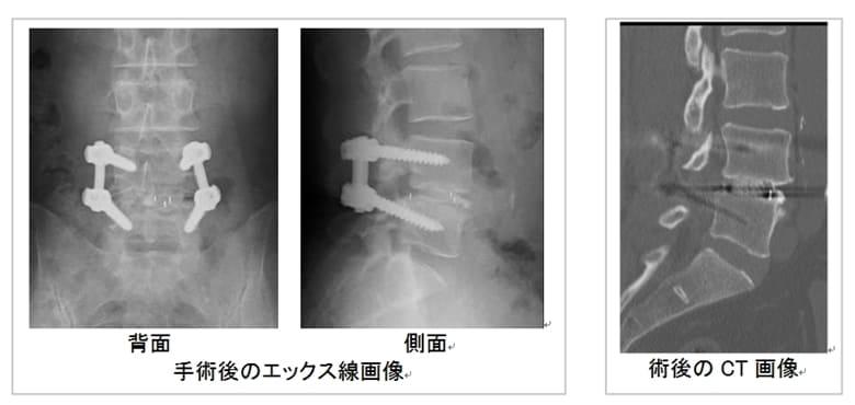 腰椎のXP画像