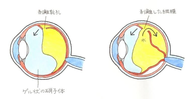 外傷性網膜剥離