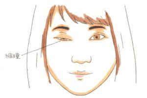 眼瞼下垂と瞳孔の収縮