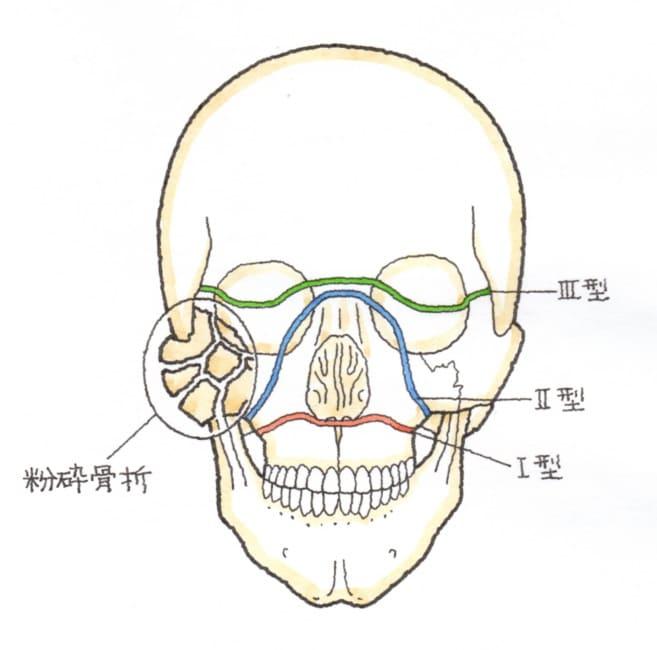 上顎骨々折(じょうがくこつこっせつ)の分類