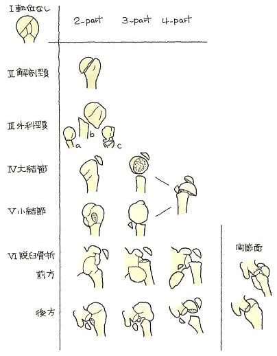 骨折の区分