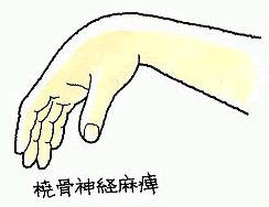 橈骨神経麻痺の症状