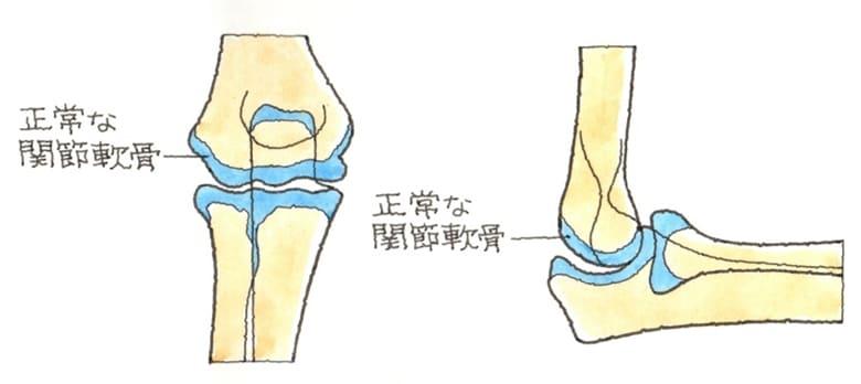 変形性肘関節症
