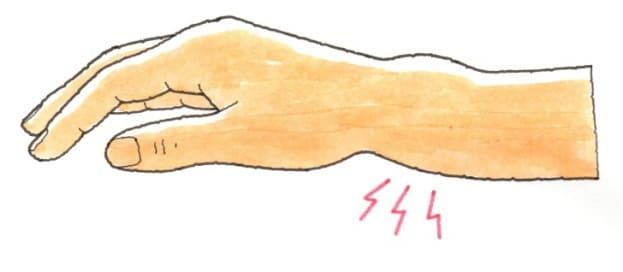 コーレス骨折の症状