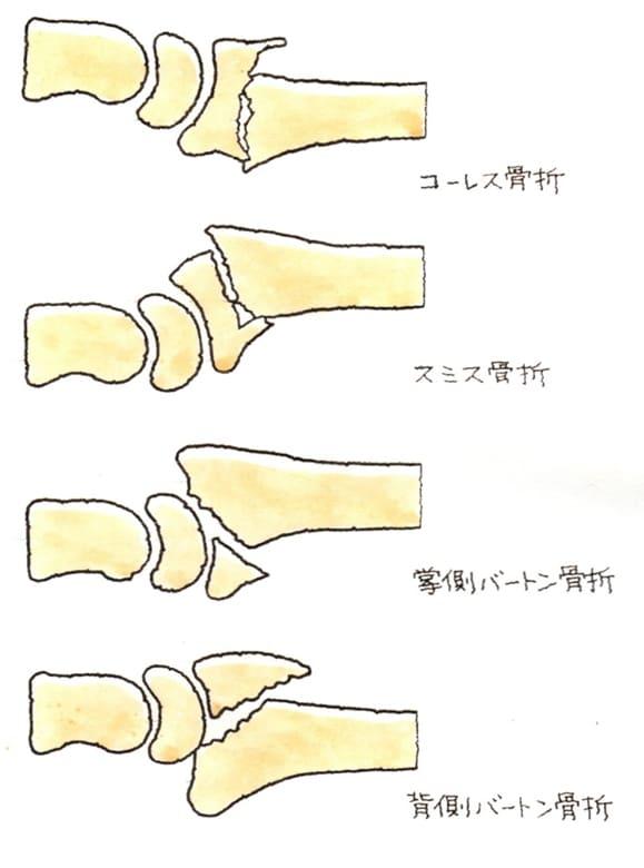 遠位端骨折の各種症例