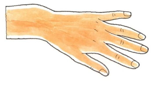 変形骨癒合の例