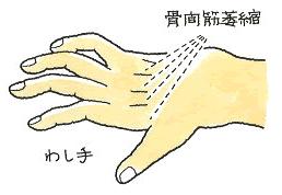 骨間筋萎縮