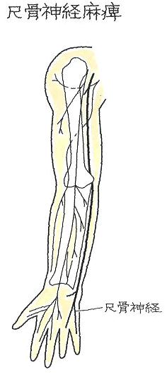 尺骨神経麻痺