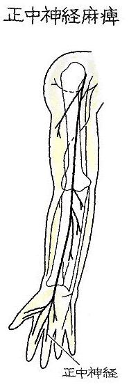 正中神経麻痺
