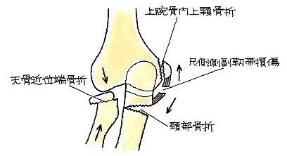 橈骨頭・頚部骨折