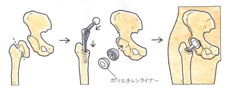 人工関節埋め込み術