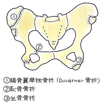 腸骨翼骨折