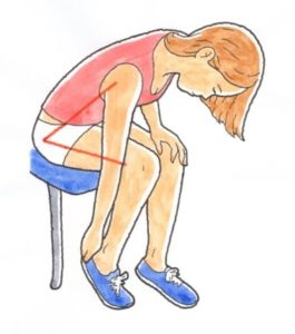 変形性股関節症の症状