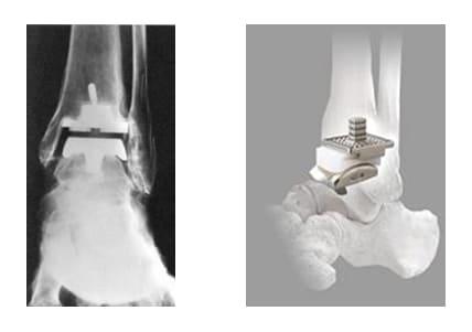 人工足関節置換術