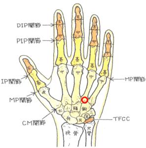 中手骨基底部骨折
