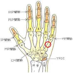 中手骨々幹部骨折