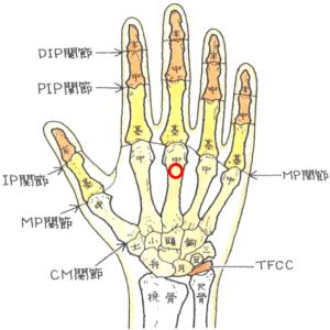 中手骨頚部骨折