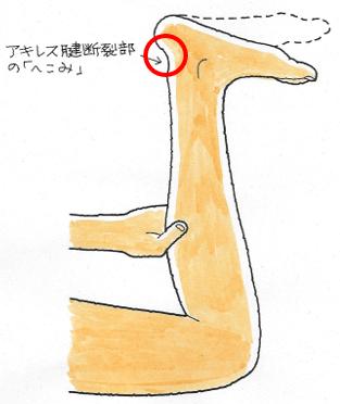 トムセンテスト
