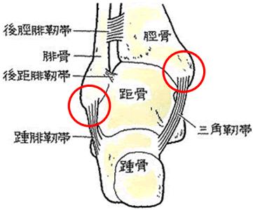 右足関節果部骨折