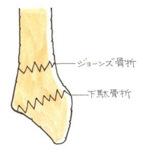 中足骨の骨折
