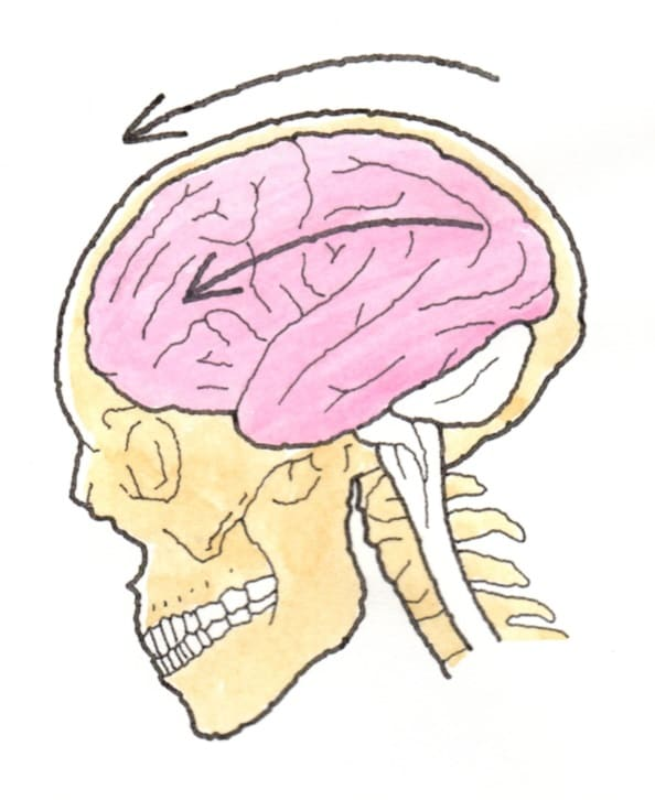 環椎後頭関節脱臼