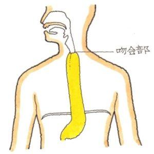 胃管吊り上げ術