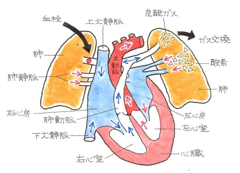 肺血栓塞栓